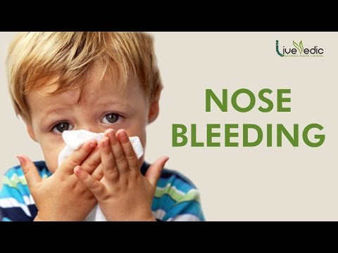DIY: Best Cure For Kids Nose Bleeding with Natural Home Remedies | LIVE VEDIC
