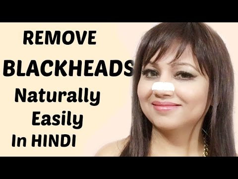 How to Remove Blackheads From Nose & Face | Naturally at Home | Clear Blackheads at Home in Hindi