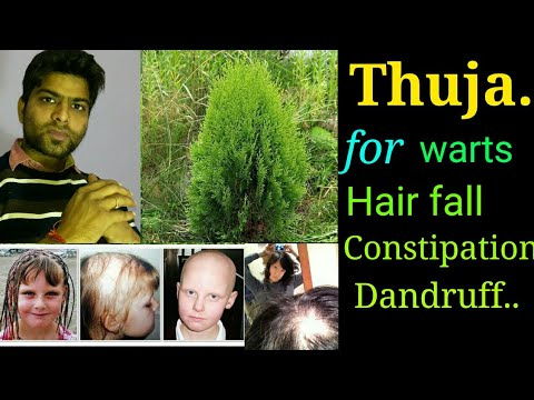 Thuja occidentalis  homeopathy remedy for Warts, boils, dandruff, headpain, Chronic constipation.