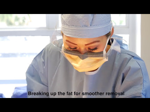 Artistic liposuction surgery using smooth and gentle technique