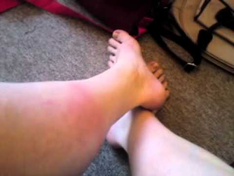 Rashes on legs after night walk 2011