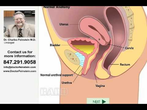 Urinary incontinence causes, symptoms and treatment with Doctor Charles Feinstein