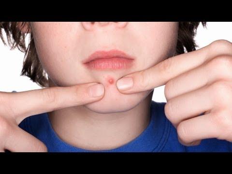 How to Prevent Clogged Pores | Acne Treatment