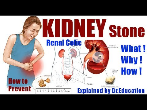 Avoid Kidney Stones | Renal colic | Ureteric stones | Types, Causes & Cure (ENG) by  Dr.Education