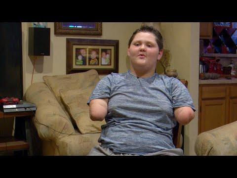 Boy Robbed of Limbs by Bacterial Meningitis