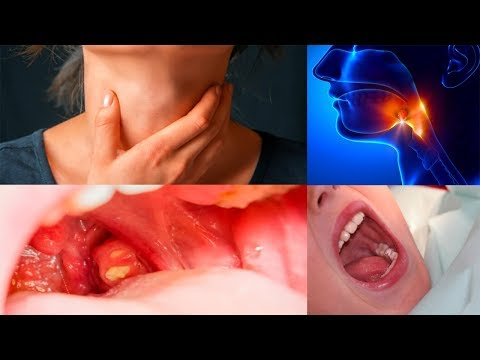 Home Remedies For Tonsil Stones Or Tonsilloliths - V 4 YOU