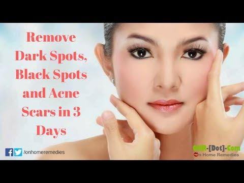 Remove dark spots, black spots and acne scars in 3 days