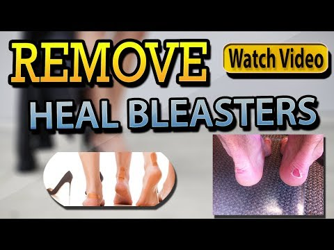 Heal Blisters On Feet Best Way To Treat | Heal Cracked Feet Quickly - Natural Treat At Home