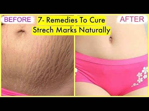How To Cure Stretch Marks at home Naturally Fast-7 Best Remedies | SuperPrincessjo