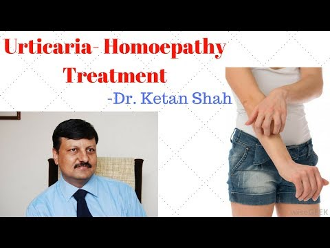 Urticaria! Homeopathic medicine for Urticaria?? explain!
