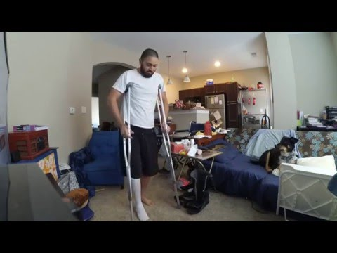 Walking again for the first time after broken leg, motorcycle accident