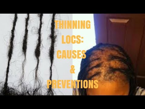THIN VS THINNING LOCS....CAUSES...PREVENTIONS....FIXES!!! I ESSENCEOFSHAY