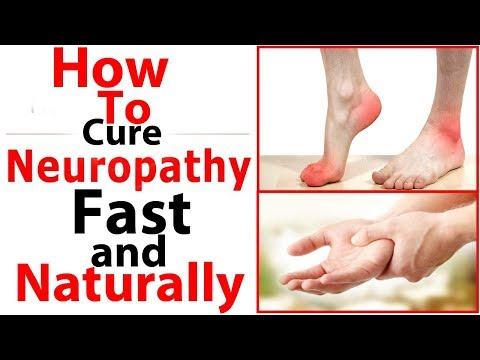 10 Ways To Cure Neuropathy Fast and Naturally/How To Cure Peripheral Neuropathy Natural Treatments