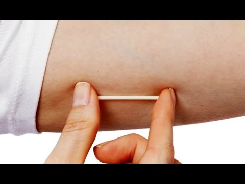 Contraceptive Implant ( Emergency Contraceptive ) | Quick Answers - Must Know | Education