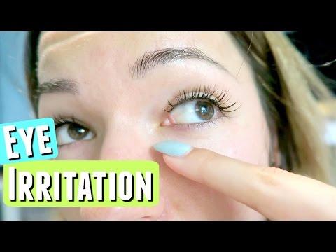 EYE IRRITATION FROM EYELASH EXTENSIONS :(