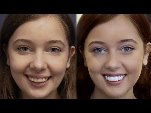 LA California Girl Gets Dental Veneers by Brighter Image Lab -Took 7 Minutes..