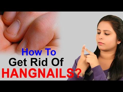 How To Get Rid Of Hangnails सुतला से छुटकारा कैसे पायें? | Nail Care Tips - Lifestyle