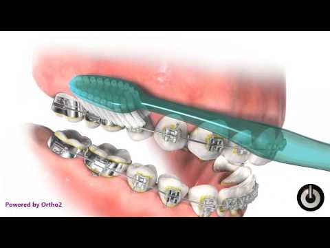 How to Maintain Proper Oral Hygiene During Treatment with Braces - Markham, ON