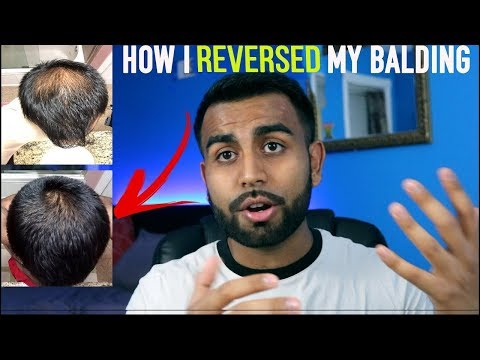 6 Things I've Used to Reverse MY Hair Loss | My Ideal Hair Growth Routine + HAIR UPDATE