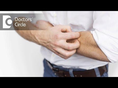 Is Eczema an autoimmune disease & how does it spreads? - Dr. Ramesh Babu N