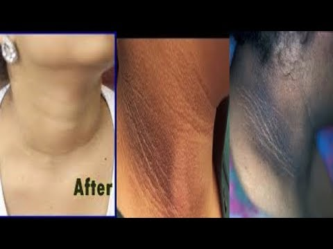 HOW TO GET RID OF DARK NECK IN 15 MINUTES  FAST AND VERY EFFECTIVE
