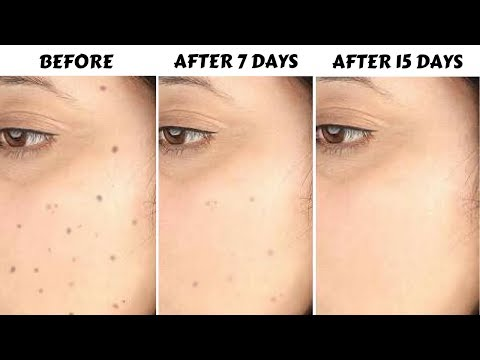 How To Remove Dark Spots, Acne Scars, Pigmentation In Just 7 Days | 100% Natural & Effective