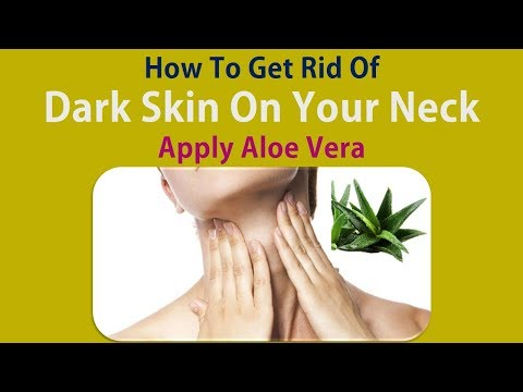 How To Get Rid Of Dark Skin On Your Neck - Apply Aloe Vera To Remove Neck Darkness