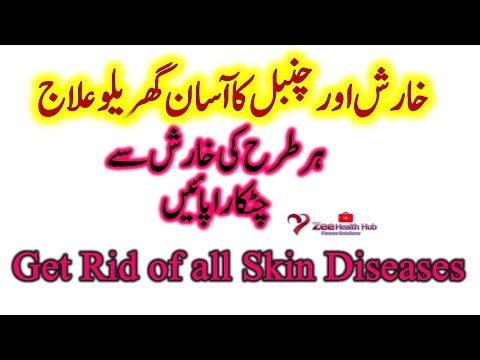 Natural Way to Remove Itching and Scabies | Desi Treatment Of Skin Diseases | خارش کا گھریلو علاج