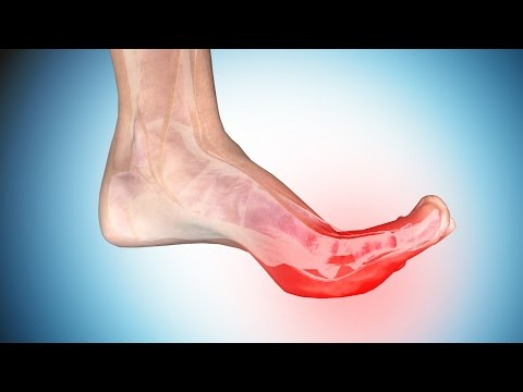 Foot Cramps: Causes and Ways to Get Rid of Cramps in Foot and Toe