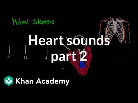 Systolic murmurs, diastolic murmurs, and extra heart sounds - Part 2   NCLEX-RN   Khan Academy