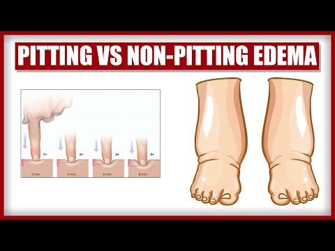 Pitting vs Non-Pitting Edema