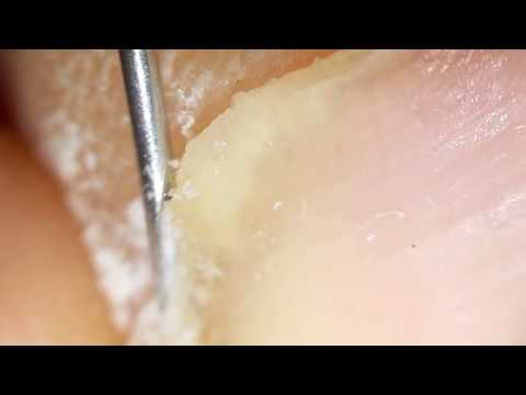 How to clean in depth lateral toenail fold #18