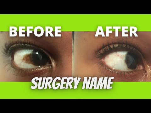 How to get rid of discolouration / brown spot / patch on the white part of the eye | Surgery name