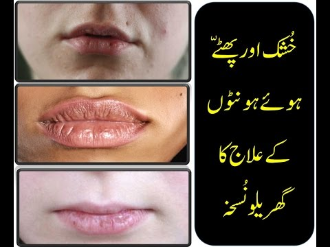 How To Get Rid Of Cracked Lips I Sore Dry Lips I How to Fix Chapped Lips in Urdu