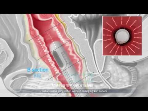 New Technology vaginal tightening System V-HIFU machine video