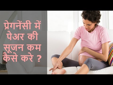 Leg cramps during pregnancy - Solution