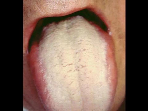 how to get rid of WHITE COATED TONGUE | Treatment
