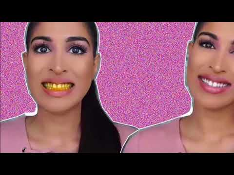 ►► Secret dentist  Turmeric for teeth whitening
