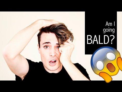 Am I going BALD? Baldness Prevention Tips | Mens Hair Loss Tips