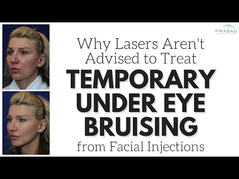 Why Temporary Under Eye Bruising is Common in Facial Injections, and Needs No Further Treatment