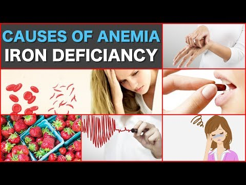 Causes of Anemia iron deficiency What Causes Anemia Iron Deficiency