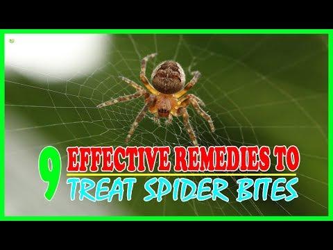 9 Effective Home Remedies To Treat Spider Bites - Brown Recluse Spider Bite Treatment
