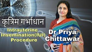 Intrauterine Insemination ( IUI) procedure