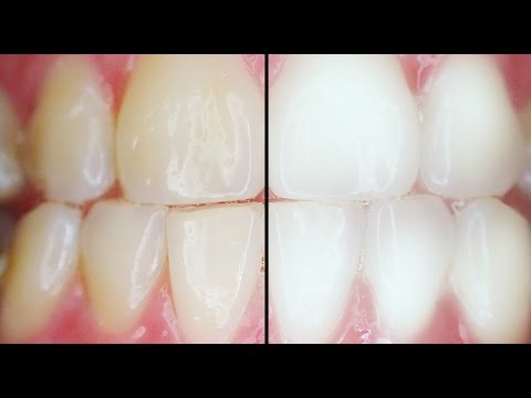 How to whiten your teeth fast and harmless