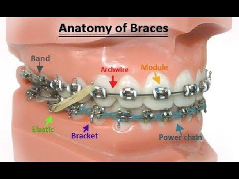 Parts Of Braces - Dr. Sarabjeet Singh  Chandigarh Orthodontics
