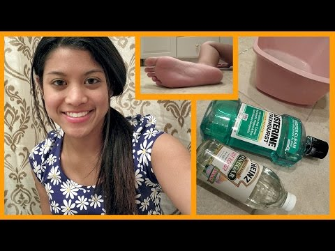 DIY Dry Foot Remedy Review