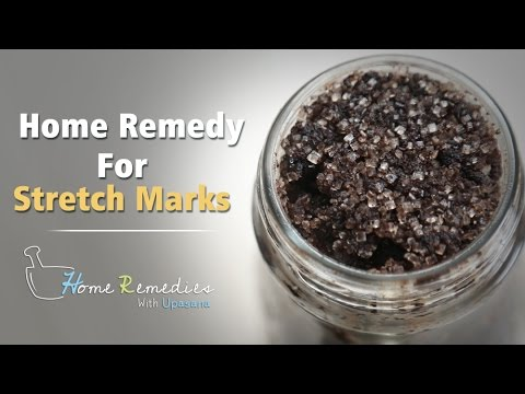 Home Remedy For Stretch Marks | How To Get Rid Of Stretch Marks | Mind Body Soul