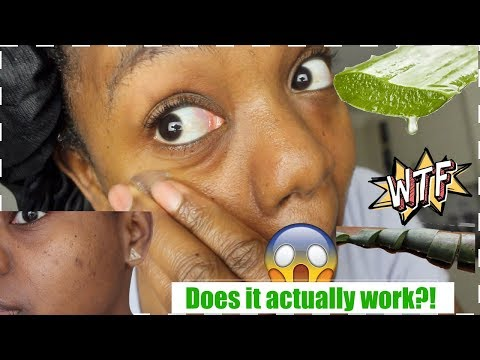 I used fresh aloe vera on my face for 5 DAYS & THIS HAPPENED!