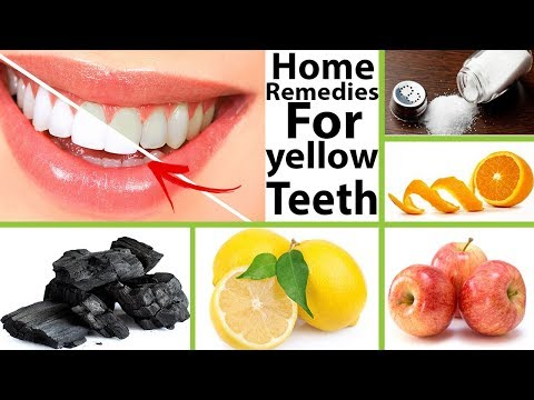 top 10 home remedies for yellow teeth  || How To Get Rid Yellow Teeth  ||