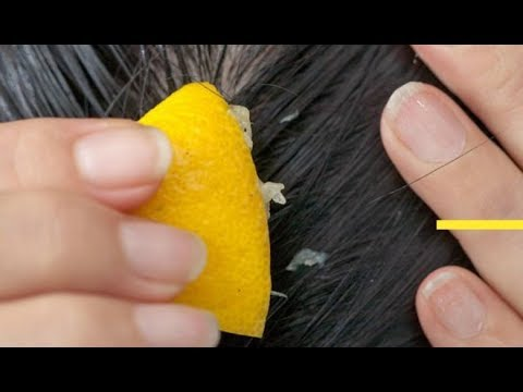 ஹேர் டையை நீண்ட காலமாக பயன்படுத்துபவரா? | Treat Hair Dye Allergy In tamil | Tamil Beauty Tips